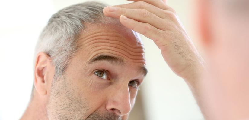 Imagen ilustrativa de la alopecia en hombres