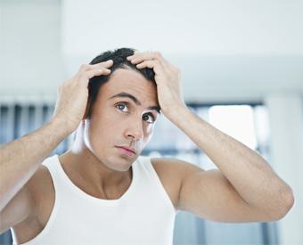 Alopecia y trasplante de pelo en hombres
