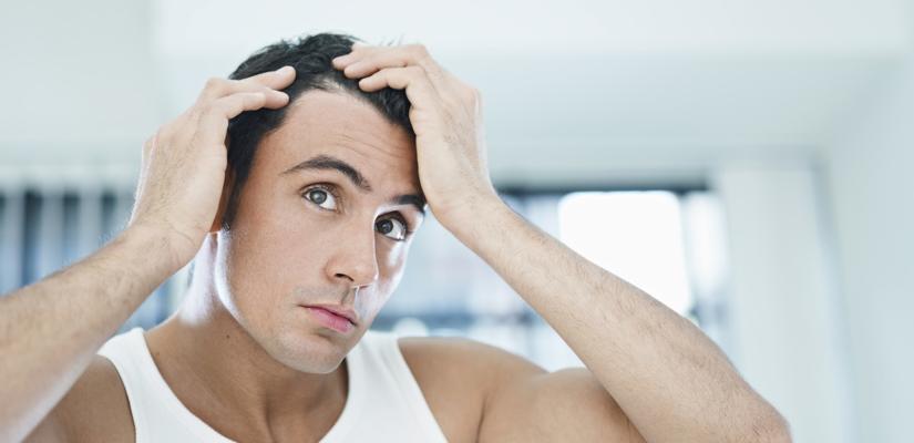 Hombre preocupado por una posible alopecia